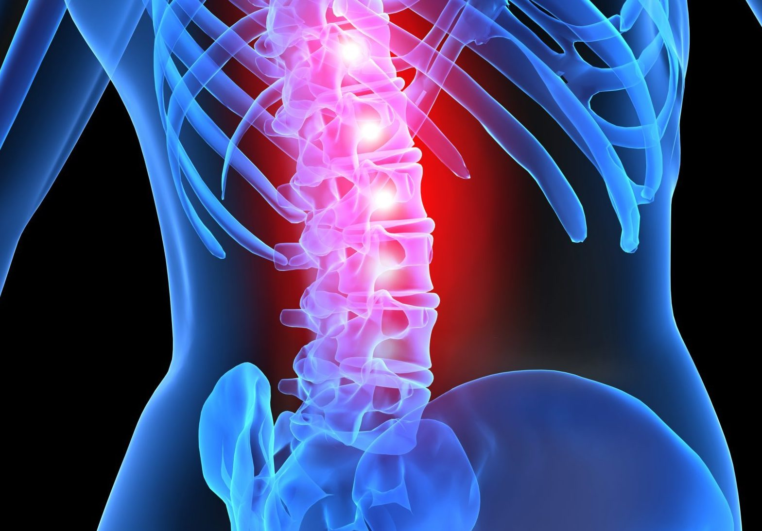 Why back pain is still so prevalent in the western world?